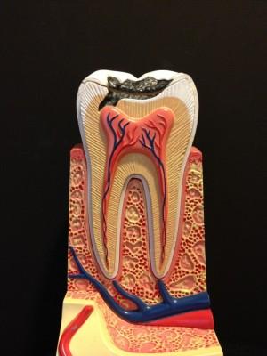 歯の内部がわかる模型