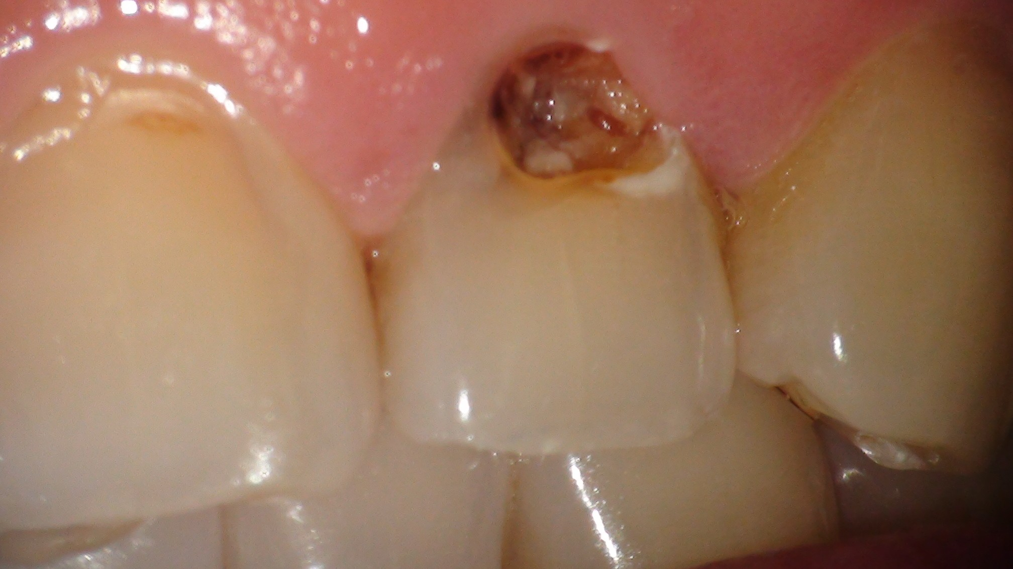 前歯の虫歯