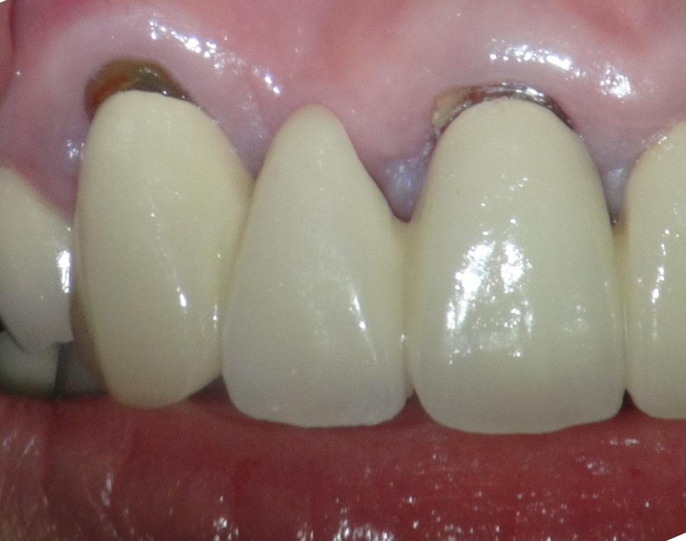 歯とメタルボンドの間の隙間