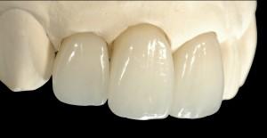 前歯のオールセラミッククラウン
