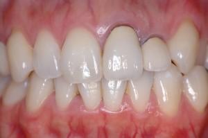 歯茎が痩せて歯とセラミックの間が黒く