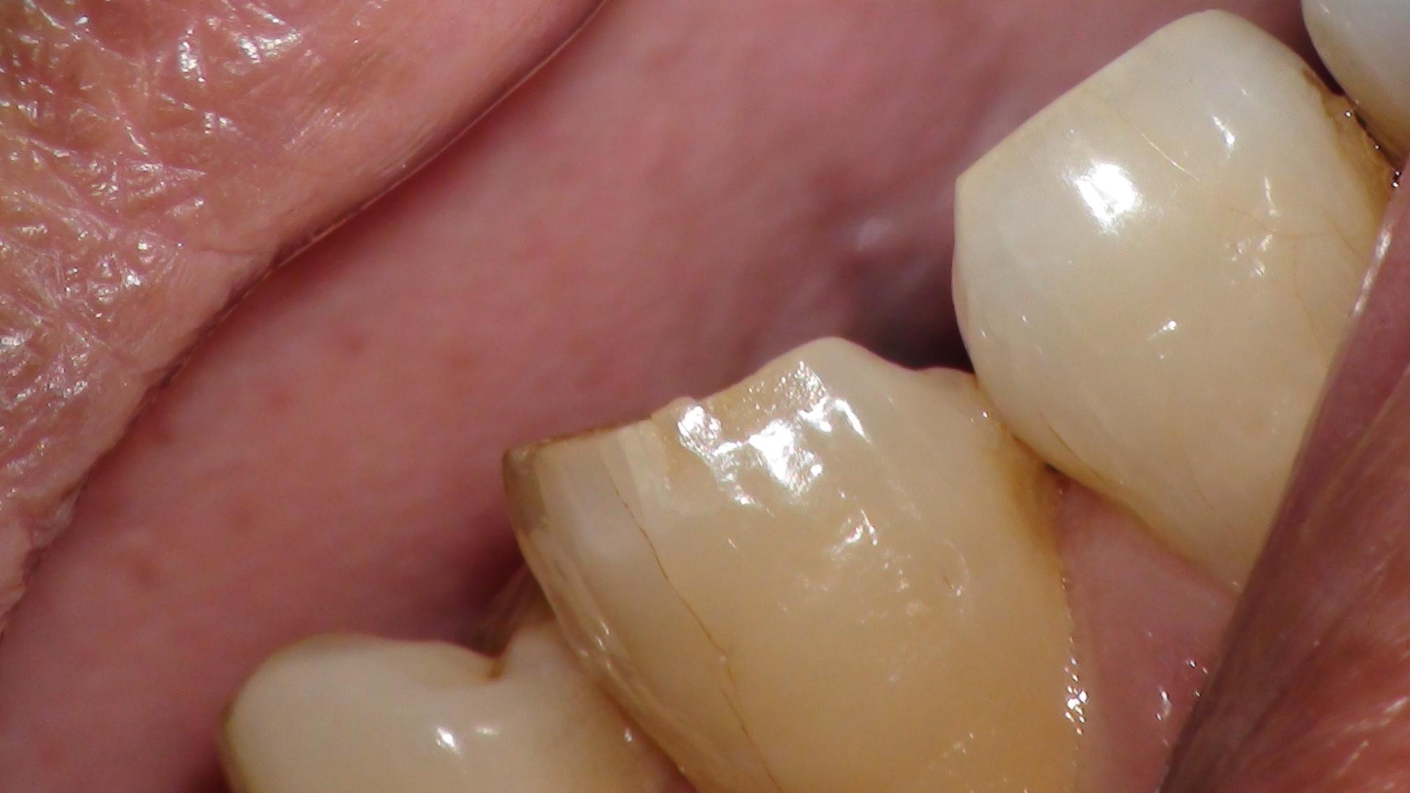 歯の頭にヒビ