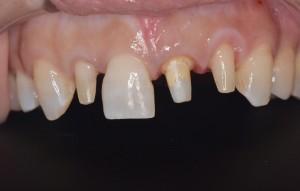 矯正とセラミック前歯術中