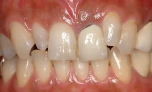 矯正とセラミッククラウン前歯術前