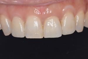 矯正とセラミック治療前歯術後