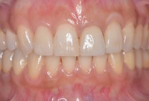矯正とセラミック治療前歯術後正面