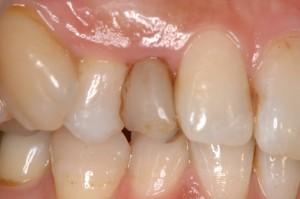 乳歯残っている術前
