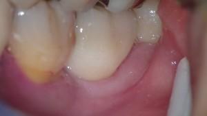 ひどい虫歯から回復3