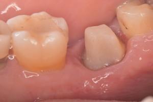 ひどい虫歯から回復2