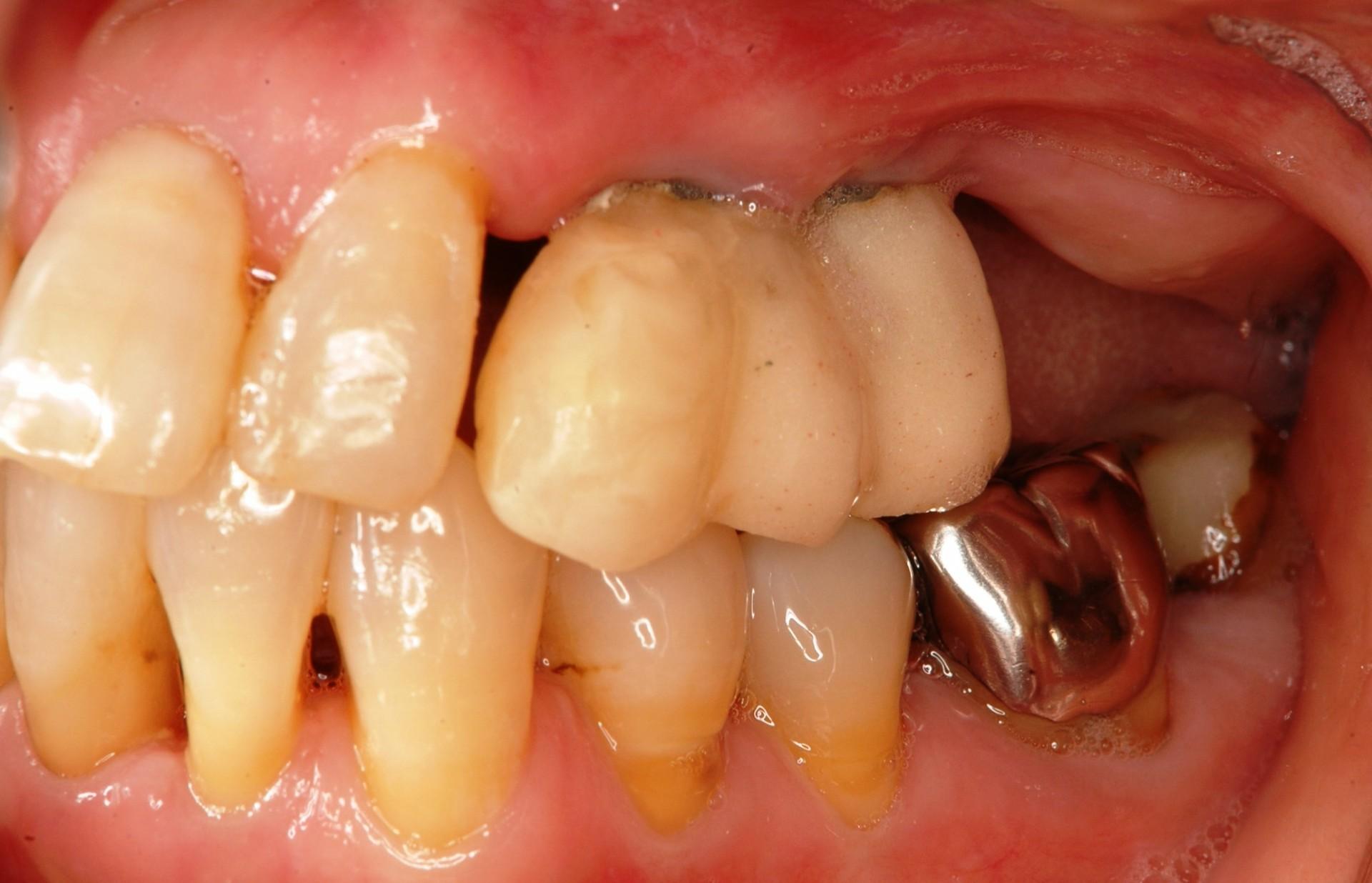 歯周病にインプラント術前左