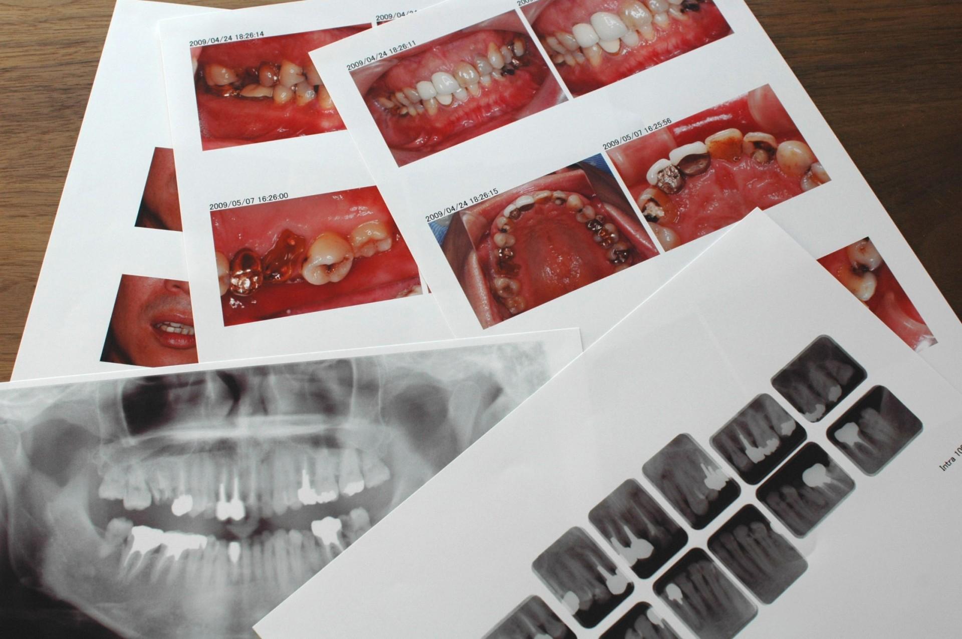 カウンセリングブックお口の写真・X線写真