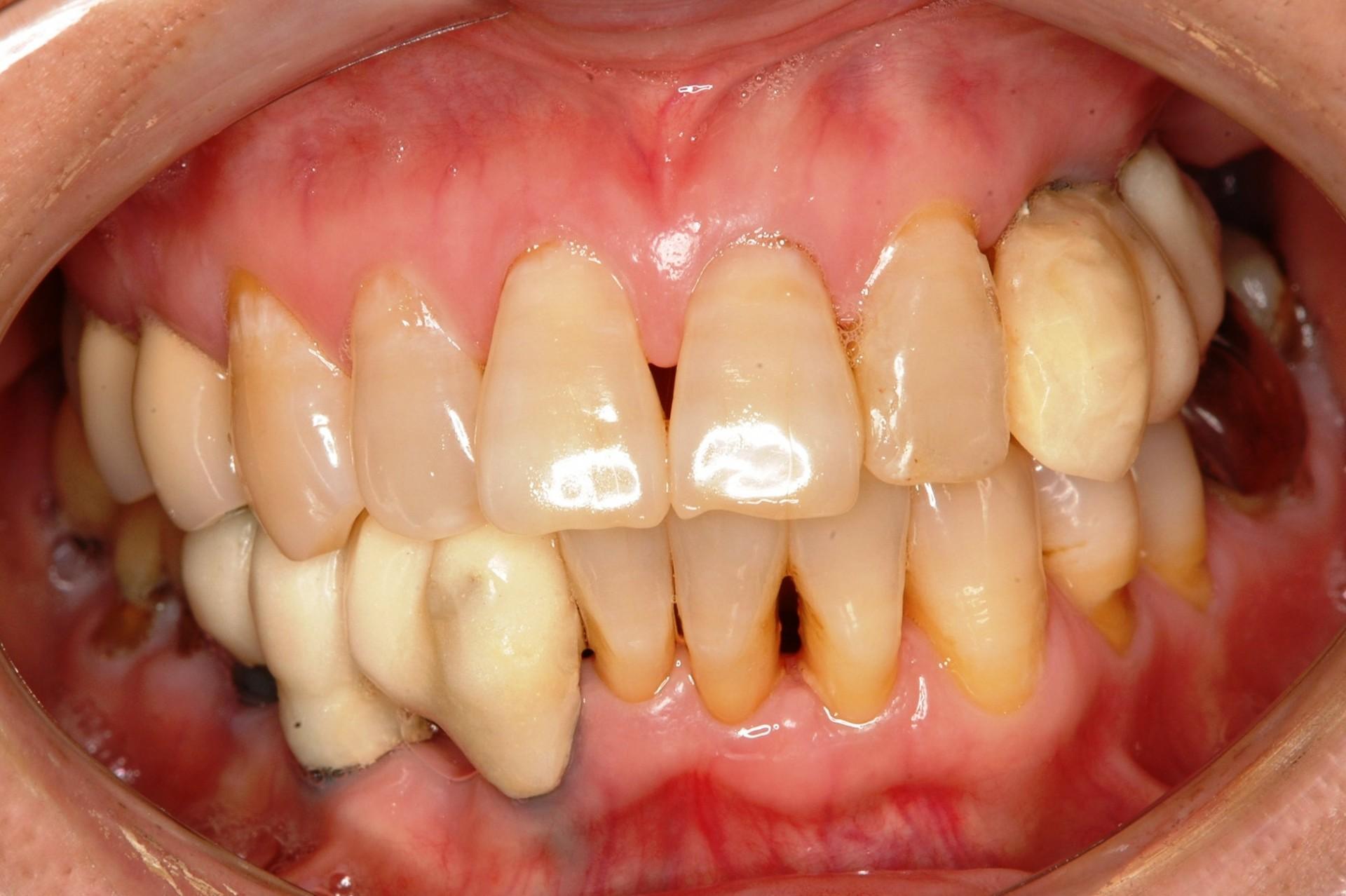歯周病にインプラント術前正面