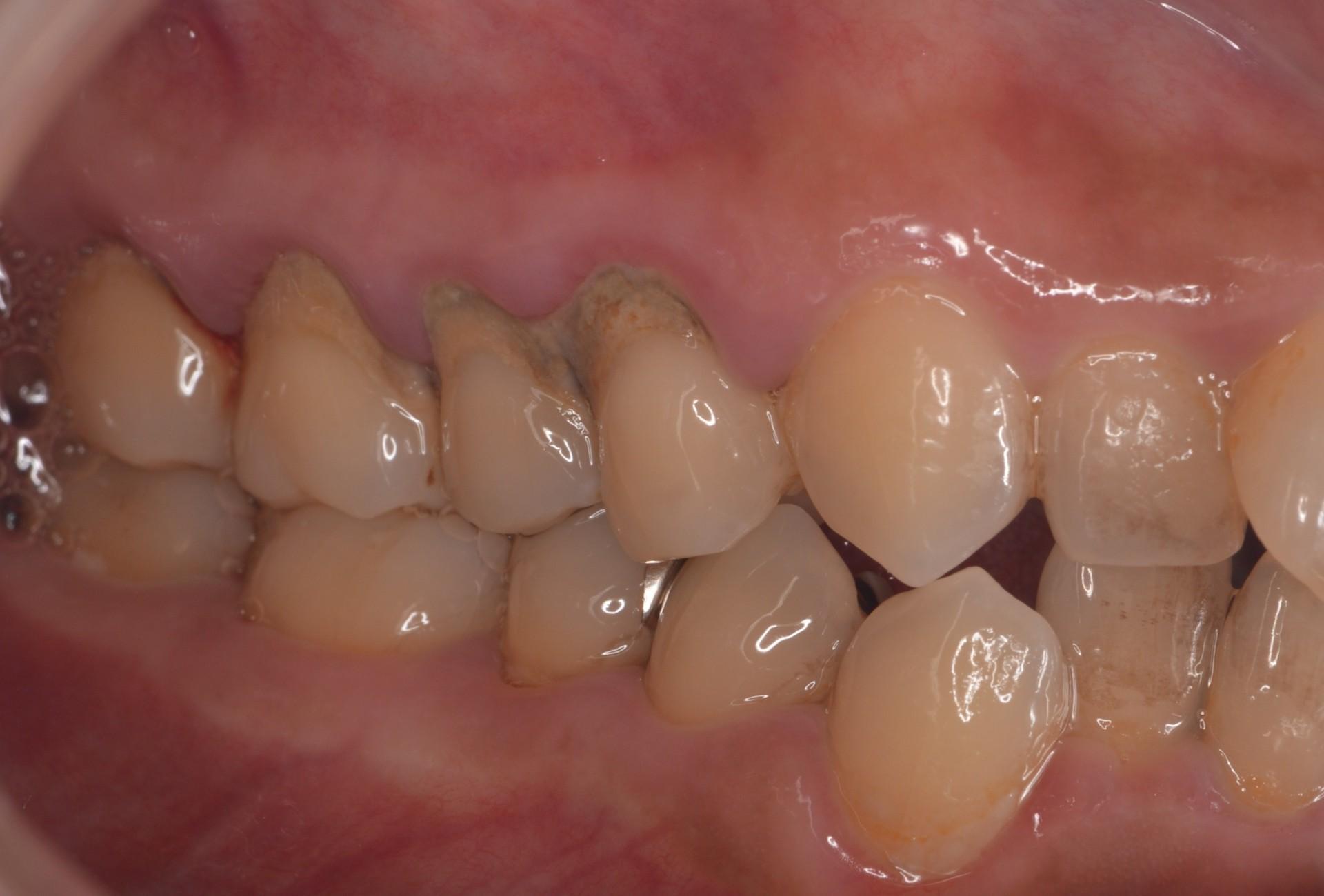 ひどい歯周病術前右