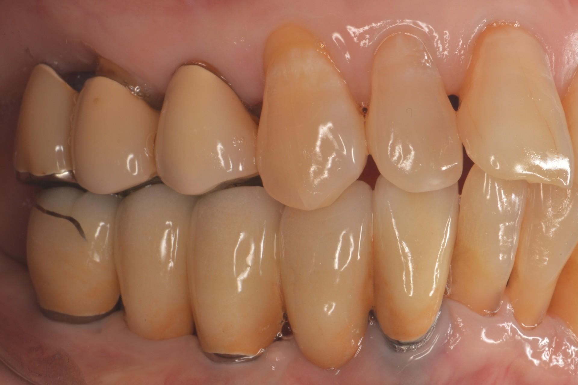 歯周病にインプラント術後右