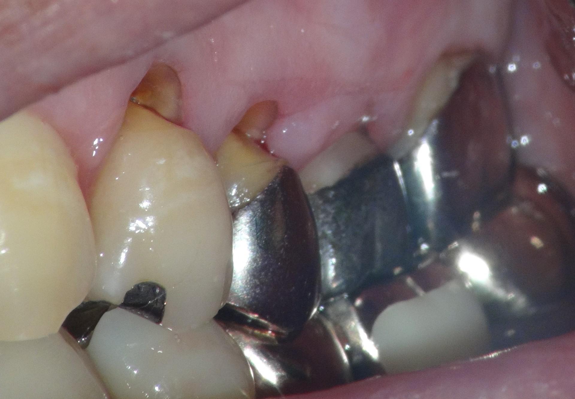 銀歯の歯茎が痩せて虫歯