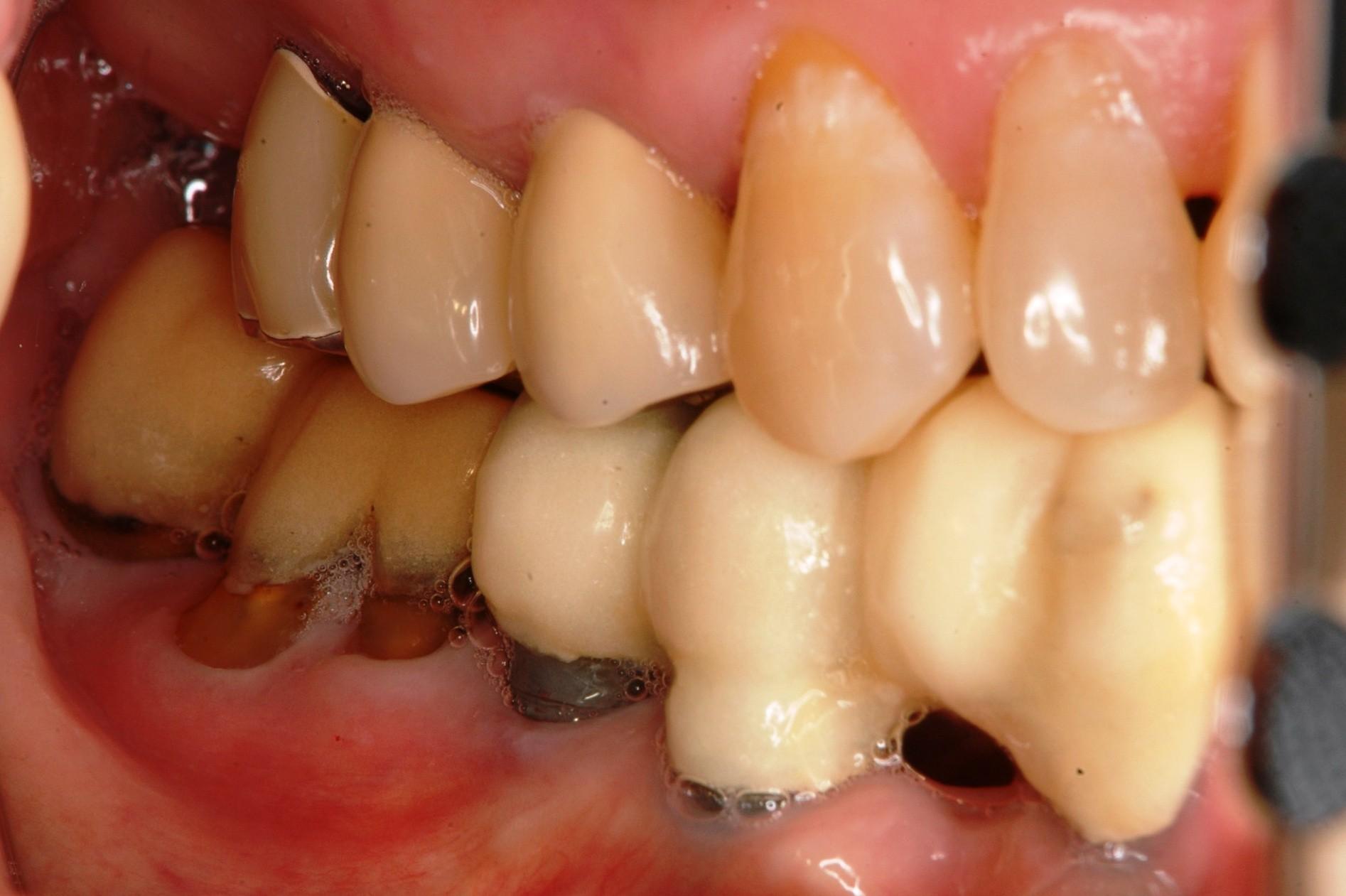 歯周病にインプラント術前右
