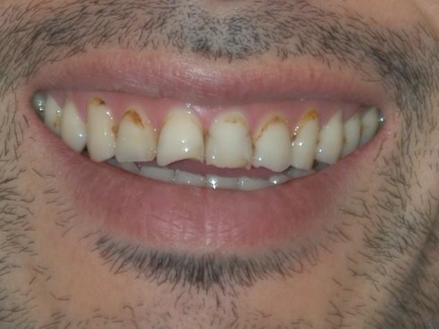 虫歯治療前スマイル拡大