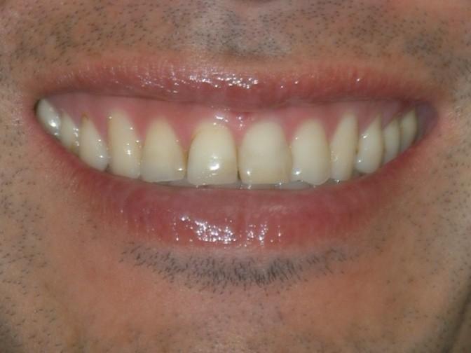 虫歯治療後スマイル拡大