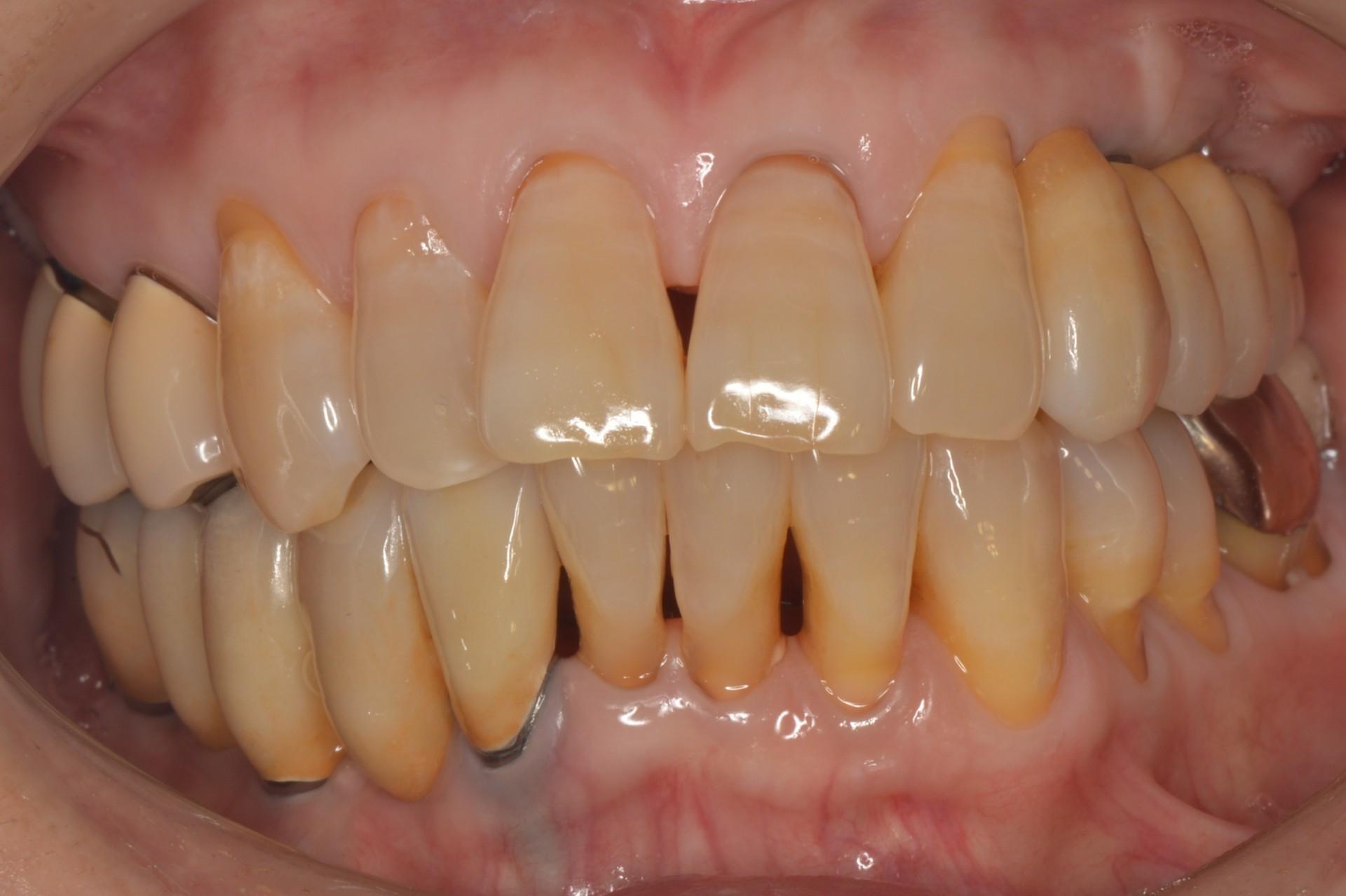 歯周病にインプラント術後正面