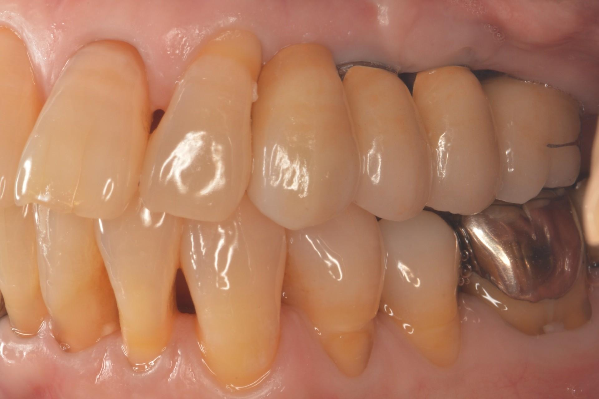 歯周病にインプラント術後左