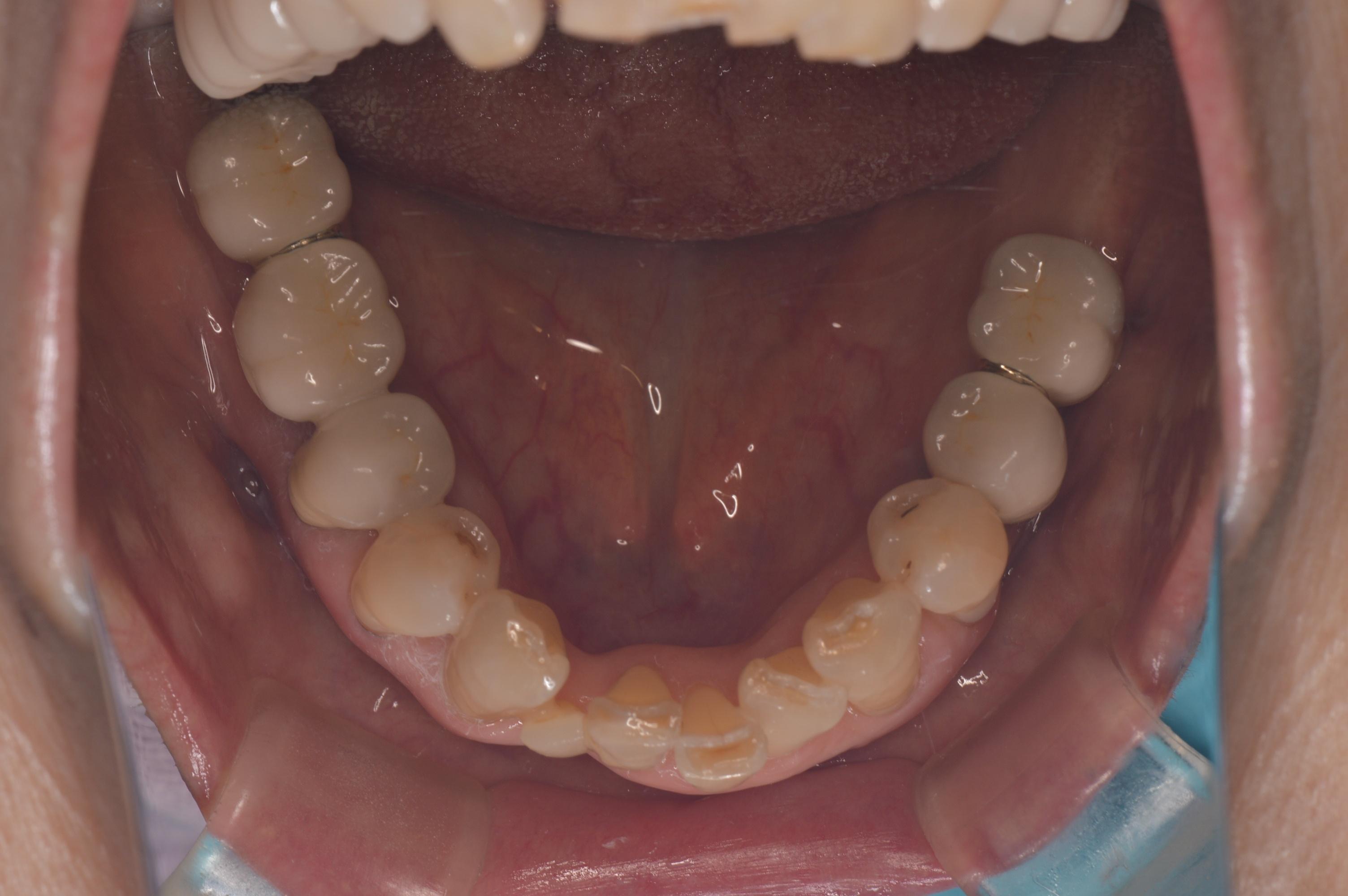 自費診療結果例下顎